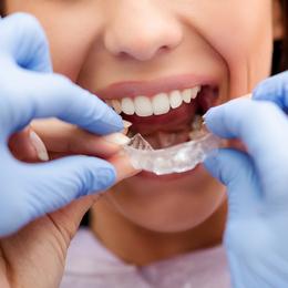 Orthodontic Advancements